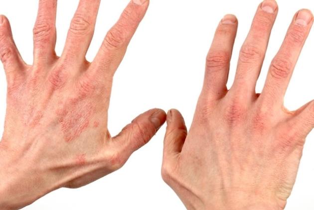 Аллергический дерматит: сколько длится, симптомы и лечение у взрослых