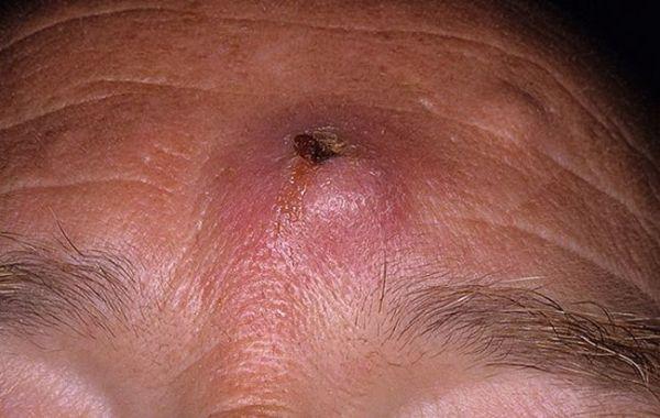 Атерома на лице [киста сальной железы] – 5 способов удаления