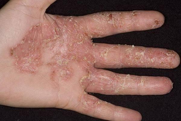 дерматофития рук