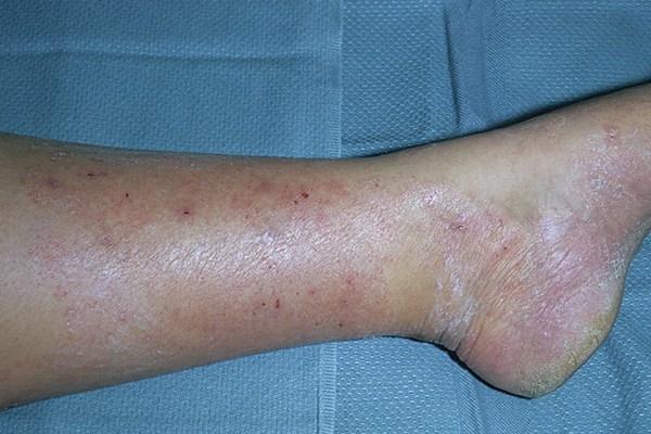 дерматофития