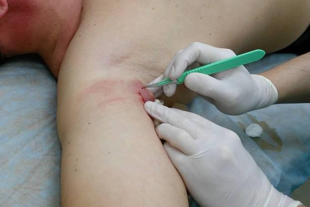 хирургическое лечение гидраденита