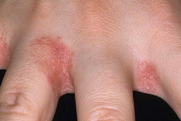 грибковый дерматит