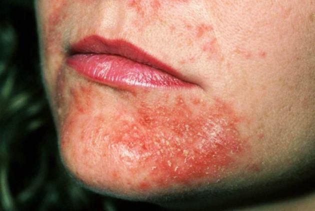 инфекционный дерматит