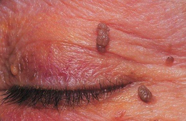 папиллома - новообразование на коже