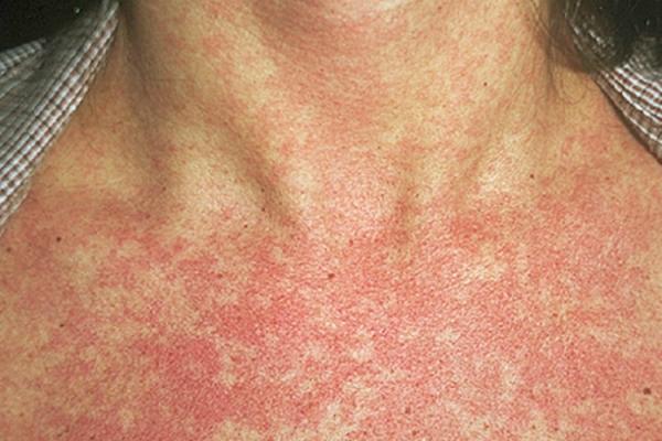 вирусные заболевания кожи