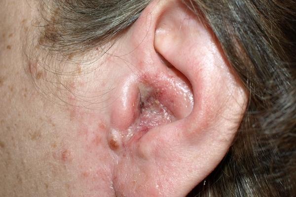 ушной дерматит