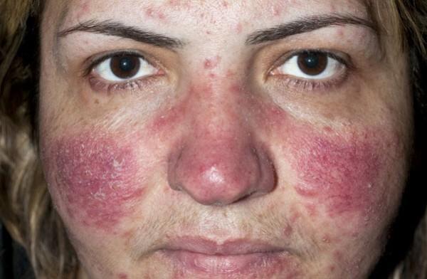 болезнь кожи - купероз
