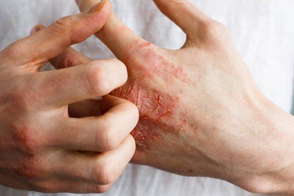 Хроническая экзема - симптомы и лечение медикаментозными и народными средствами