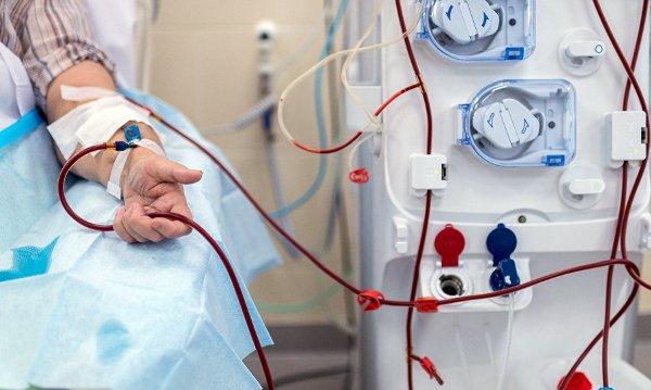 гемодиализ при лечении пузырчатки