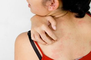 пятна на коже при неврозе