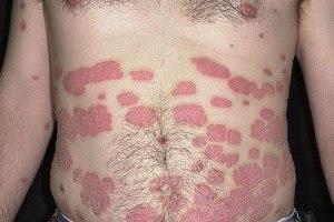 пятна на коже при псориазе