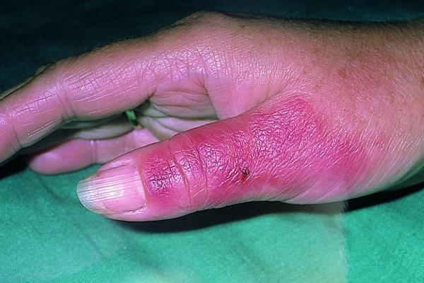 рожистое воспаление на пальце