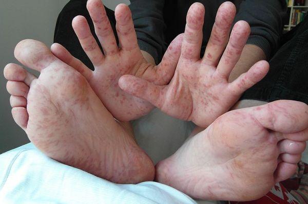 синдром рука нога рот