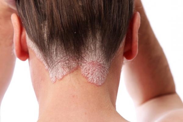 сухой дерматит на голове