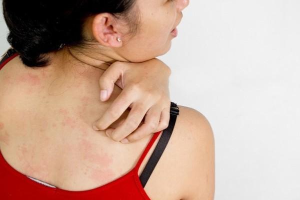 зуд и раздражение кожи