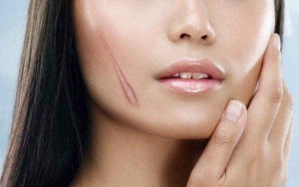 дерматикс применят при шрамах