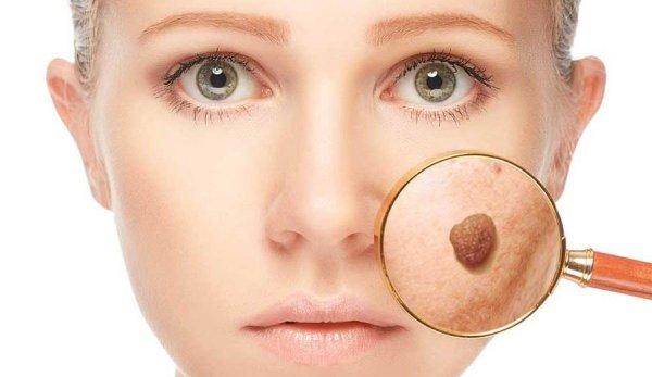 Себорейный кератоз: фото, лечение кожи в домашних условиях и что это такое
