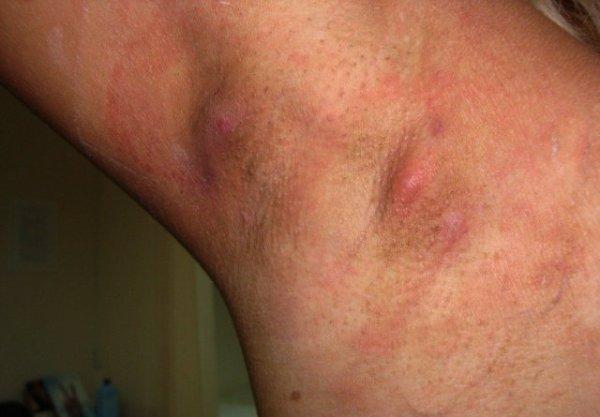 гидраденит под мышкой причины и лечение