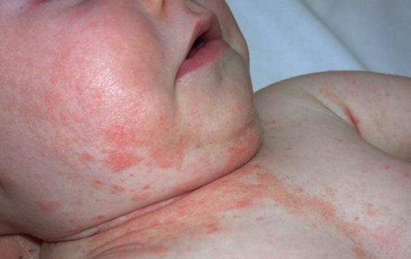 контактный дерматит у детей