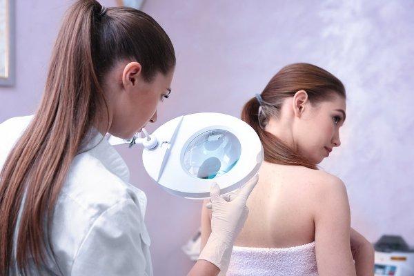 диагностика солнечного кератоза