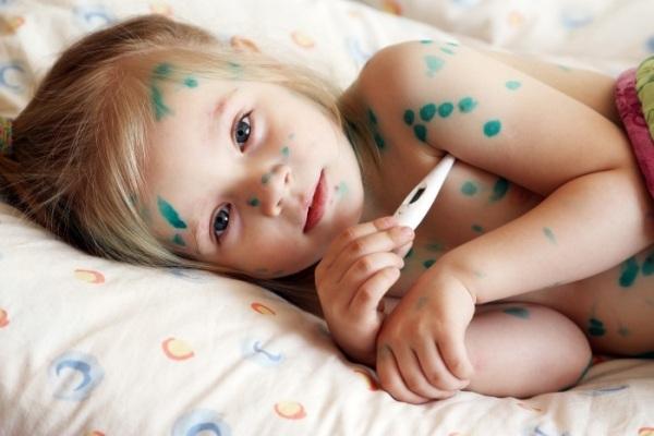пузырчатка у детей