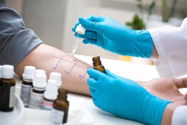диагностика себорейной экземы
