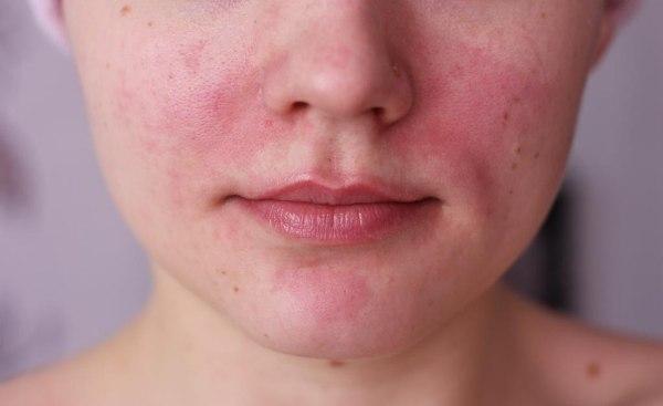 Дерматит на лице - причины, симптомы, лечение