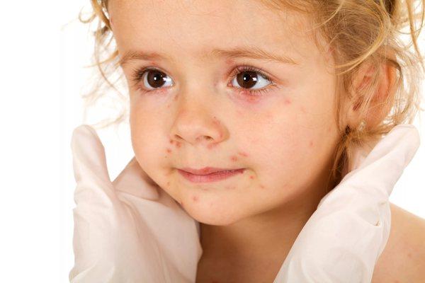 волдыри у ребенка