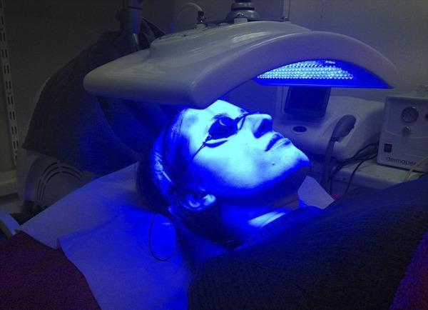Склеродермию лечат ультрафиолетом
