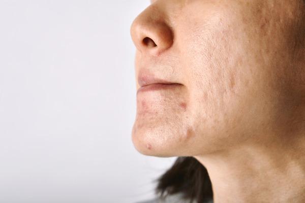 шрамы и рубцы появляются после неправильного лечения угревой сыпи