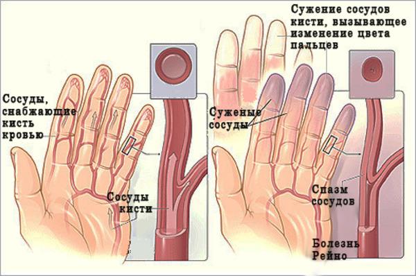 механизм системной склеродермии